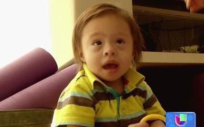Novedoso método de células madre para niños con Síndrome de Down