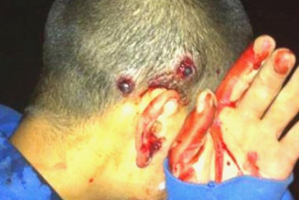 "Maduradas.com tildó de ""indignantes"" las imágenes de jóveres heridos dur..."