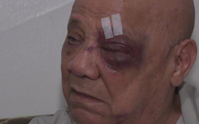 Le propinan brutal golpiza a un adulto mayor en El Bronx para robarlo