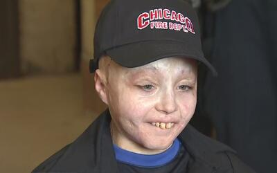 Un niño que sufrió graves quemaduras fue nombrado bombero honorario de C...
