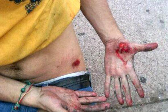 Las protestas fueron convocadas por el líder opositor Leopoldo López, co...