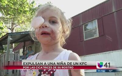 Restaurante expulsó a niña por cicatrices
