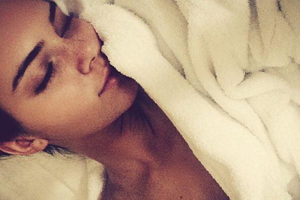 Kendall Jenner demostró una vez más que ella es bella al natural y sin u...