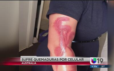 Una mujer sufre quemaduras por dormir junto a su celular