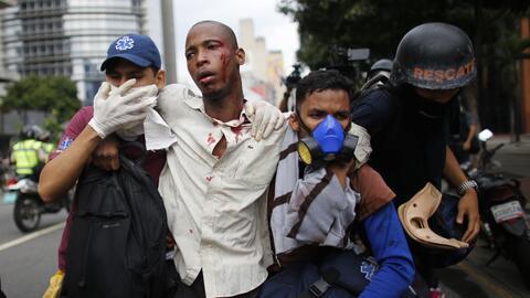 Paramédicos asistiendo a un hombre herido en los enfrentamientos con las...