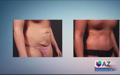 El Precio de la Belleza: Cómo lograr el cuerpo perfecto