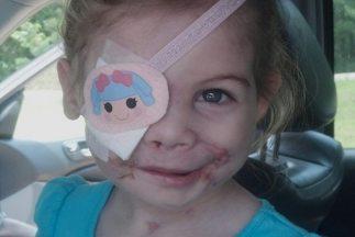 Un médico le ofrece cirugía reconstructiva gratuita a la pequeña que fue...