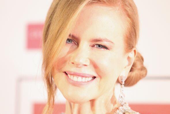 """Kidman admitió que usar botox fue un error: """"Lo del bótox fue un error,..."""