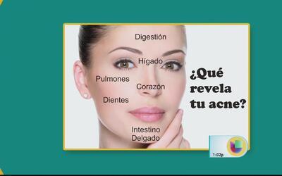 Conoce cómo combatir el acné y qué lo ocasiona