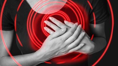 Consulta con Dr. Juan: ¿cómo identificar un infarto?