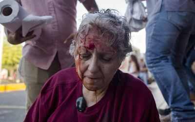 Una mujer herida durante las manfestaciones de protesta contra el gobier...