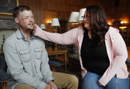 El encuentro a fines de octubre fue en la Clínica Mayo, Minnesota, institución que realizó la operación de 56 horas. La historia relatada por la agencia AP, cuenta que Lilly Ross extendió su brazo y tocó y palpó el rostro Sandness, que antes era de su esposo.