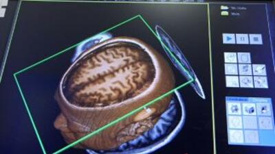 Así luce su cerebro cuando usted está enamorado.