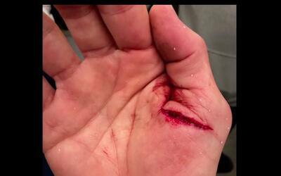 Así lucía la cortada en su pulgar.