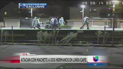 Cargos por ataque a machetazos en tren café del CTA