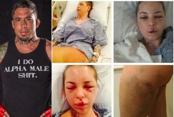 Jon Koppenhaver 'War Machine' golpeó a su novia Christy Mack, es...