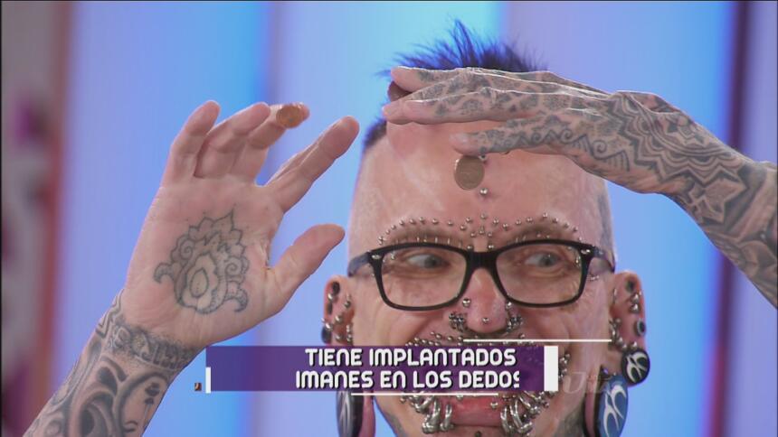 Además tiene implantes en los dedos.