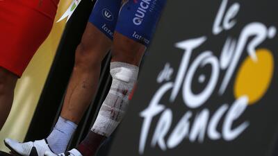 ¡Qué valentía! Philippe Gilbert sufre dura caída en Tour de Francia, pero acaba la carrera