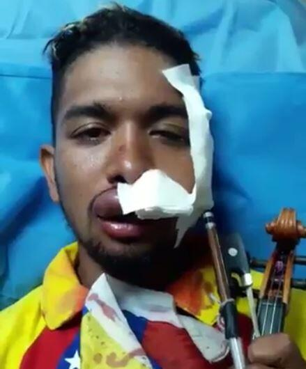 Wuilly Arteaga was injured in a protest in July and then held 19 days in...