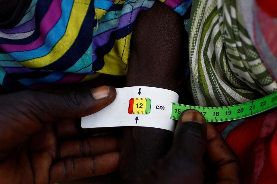 Sudán del sur: Un miembro de Unicef realiza un chequeo a niño en busca d...