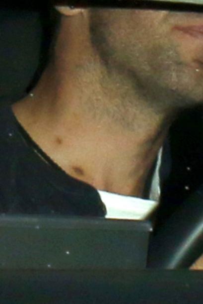 Martin lució unas raras marcas en el cuello, ¿será que Gwyneth le hizo u...