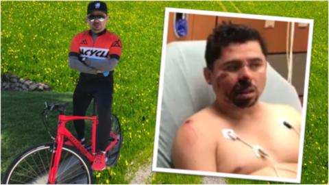 Larry Hernández deja de subir fotos de su accidente de bicileta en redes...