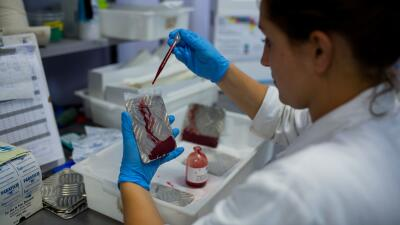 Investigan posible contagio del zika por vía sexual