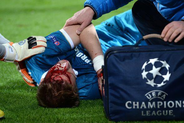 El jugador disputaba el balón con el polaco Robert Lewandowski, cayó al...