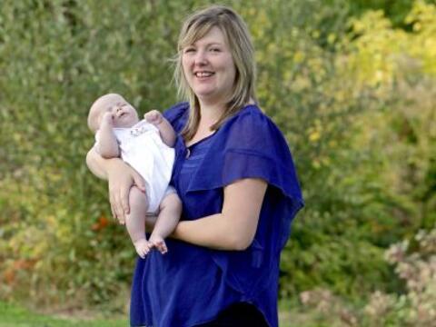 Este bebé nació con una condición mortal en su cere...