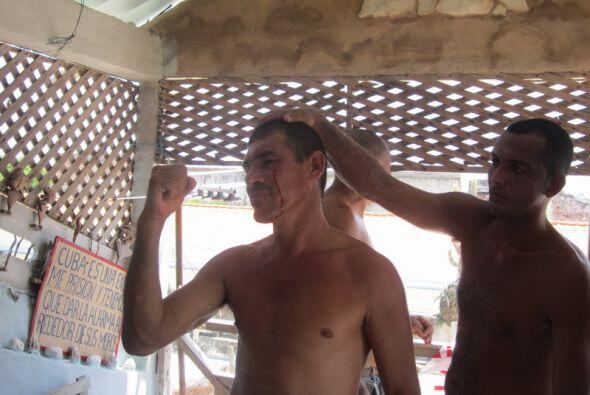 Opositor muestra una herida en el rostro causada por las fuerzas represi...