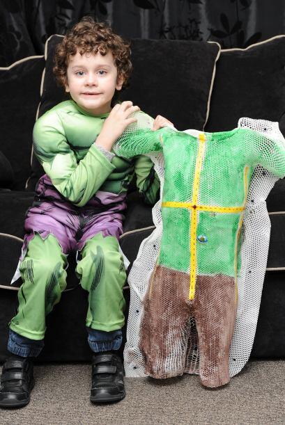 El traje le ayudó a Callum a mantenerse inmóvil durante varias semanas d...