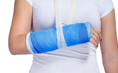 Detecta si has tenido una fractura y aprende cómo debes tratarla