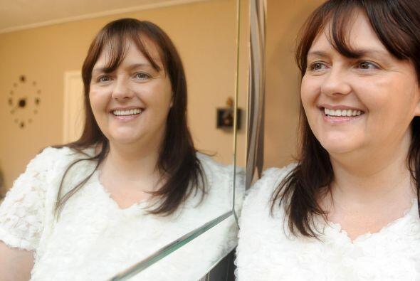 Ahora Lynda está orgullosa de su dentadura y no puede dejar de sonreír.
