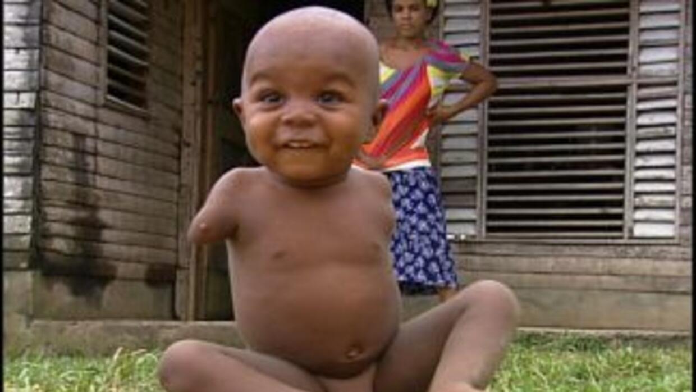 Niños nacidos con malformaciones comenzaron a aparecer en pueblos donde...