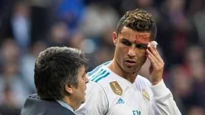 Cristiano Ronaldo con la cara ensangrentada.