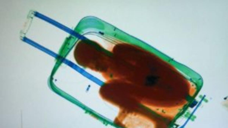 Niño de 8 años que intentó cruzar la frontera dentro de una maleta