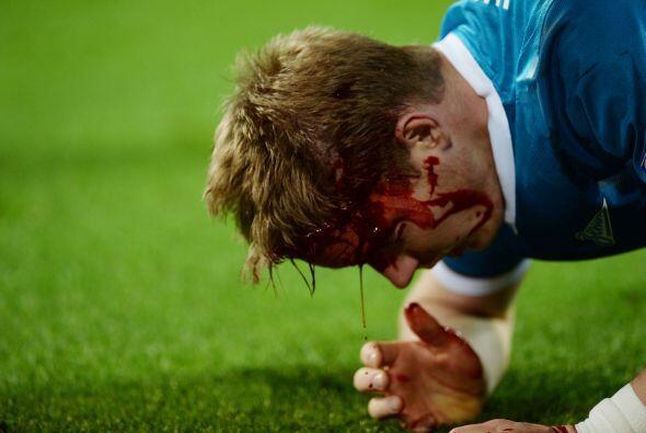 Pero cuando ya se jugaban los minutos finales del partido sucedió la not...