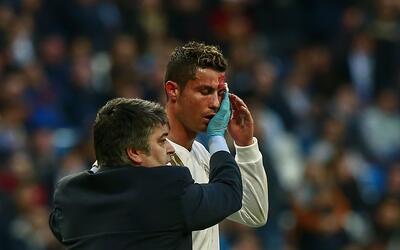 Cristiano Ronaldo cortada