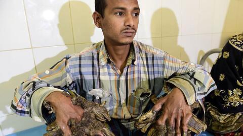 Abul Bajandar, el 'hombre árbol' de Bangladesh que padecía...