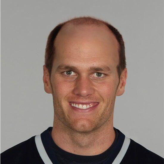 Tom Brady de los Patriotas de Nueva Inglaterra.