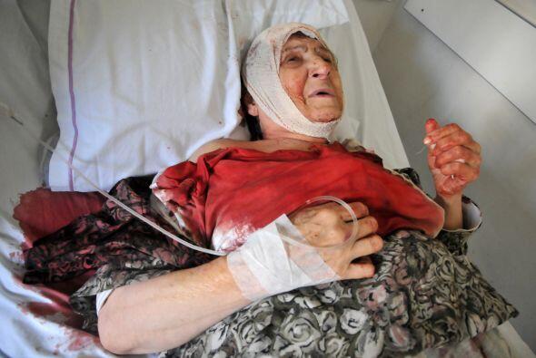 Una mujer libanesa herida yace en una cama de un hospital.
