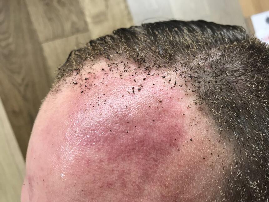 Peter Crowley publicó en su cuenta de Twitter una fotografía de su cabez...