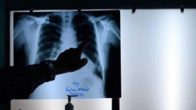 Un médico comprueba una radiografía