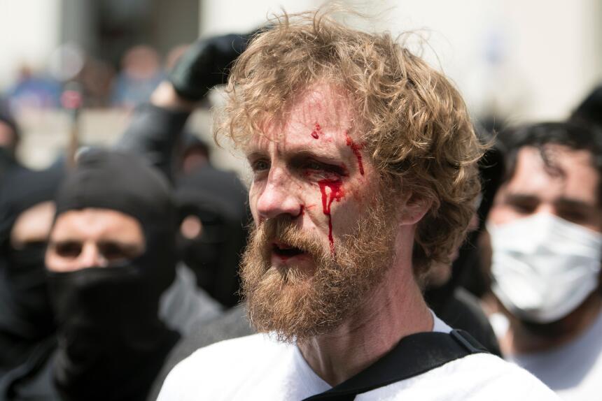 La sangre corre por el rostro de este hombre después de que estallaran m...