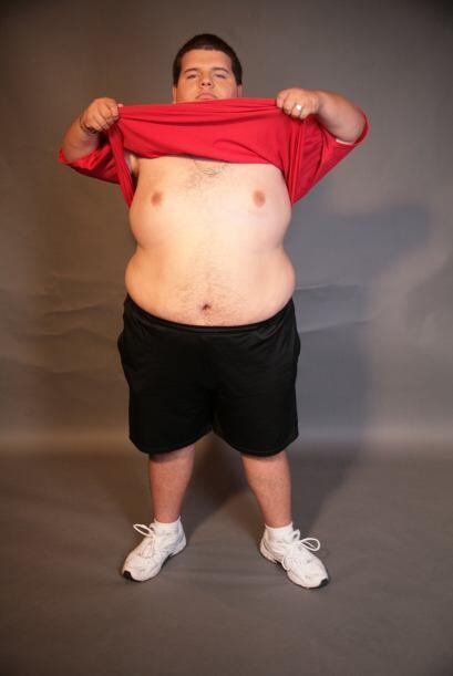 La obesidad lo tenía a punto de sumir a su organismo en una crisis que i...