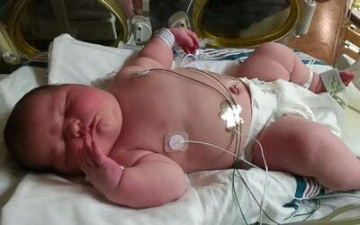 """""""Fue una sorpresa"""": una mujer da a luz a una bebé de 13.5 libras en Florida"""