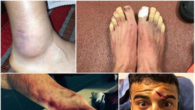 Rodolfo Pizarro, Lallana y la moda de los jugadores de 'llorar' en las redes sus heridas de guerra