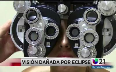 Los médicos ven un aumento en los pacientes un día después del eclipse