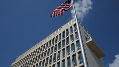 """Revelan primer informe médico sobre """"ataques sónicos"""" cubanos a diplomáticos estadounidenses"""