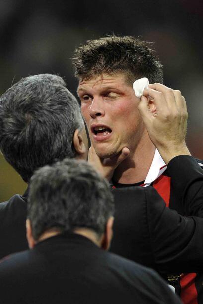 Así de peleado estuvo el encuentro, Klaas-Jan Huntelaar tuvo que atender...